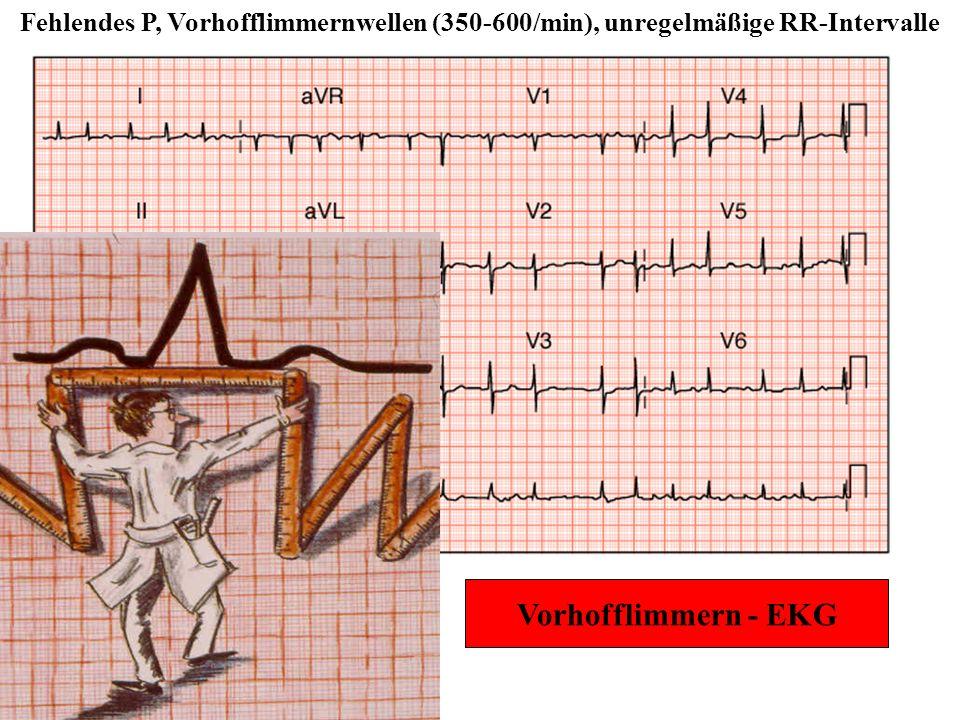Vorhofflimmern - EKG Fehlendes P, Vorhofflimmernwellen (350-600/min), unregelmäßige RR-Intervalle