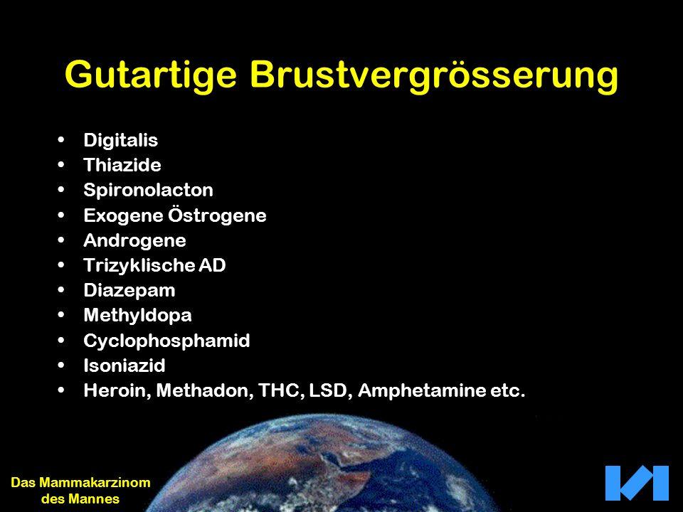 Gutartige Brustvergrösserung Digitalis Thiazide Spironolacton Exogene Östrogene Androgene Trizyklische AD Diazepam Methyldopa Cyclophosphamid Isoniazi