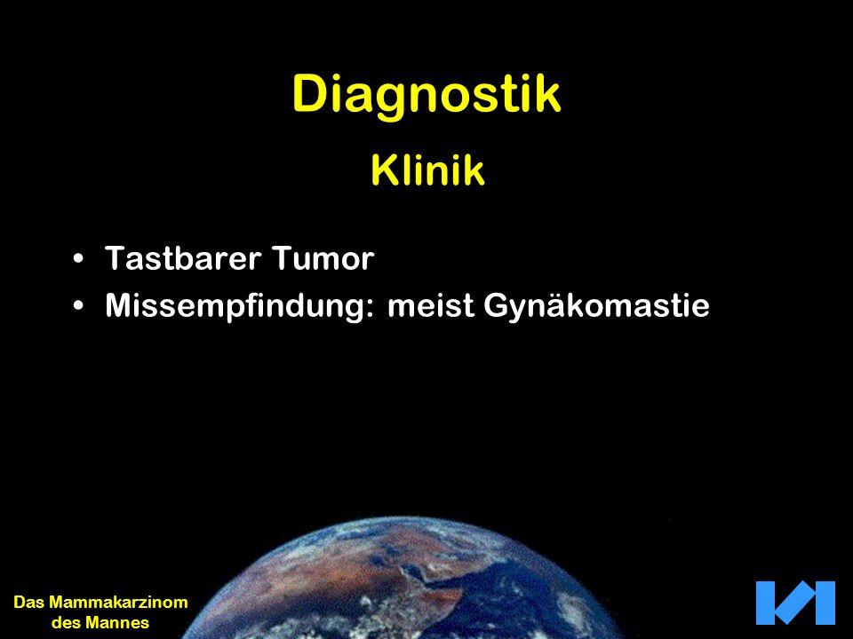Diagnostik Tastbarer Tumor Missempfindung: meist Gynäkomastie Das Mammakarzinom des Mannes Klinik