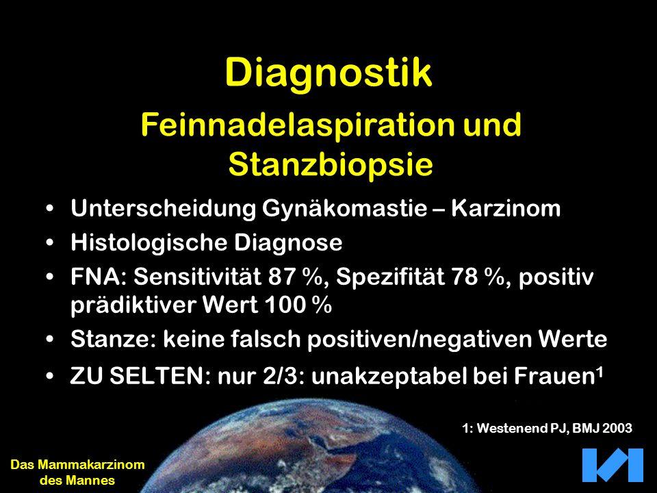 Diagnostik Unterscheidung Gynäkomastie – Karzinom Histologische Diagnose FNA: Sensitivität 87 %, Spezifität 78 %, positiv prädiktiver Wert 100 % Stanz