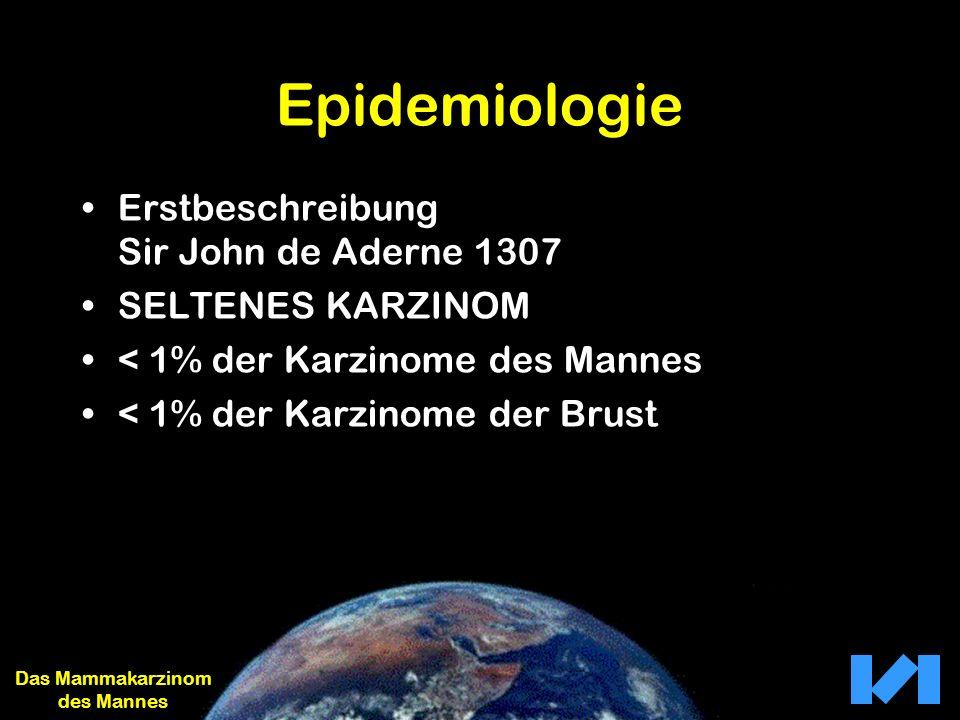 Epidemiologie Erstbeschreibung Sir John de Aderne 1307 SELTENES KARZINOM < 1% der Karzinome des Mannes < 1% der Karzinome der Brust Das Mammakarzinom