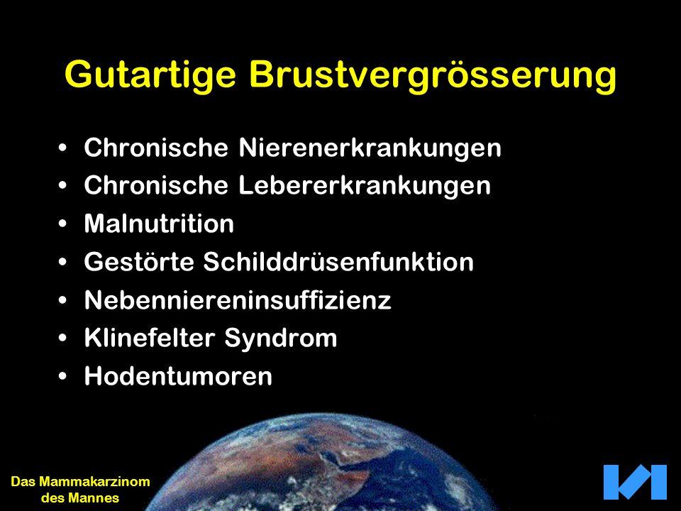 Tumorcharakteristik 1 I12 % II56 % III32 % Das Mammakarzinom des Mannes Grading 1: Stierer M: World J Surg 1995