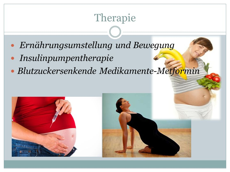 Therapie Ernährungsumstellung und Bewegung Insulinpumpentherapie Blutzuckersenkende Medikamente-Metformin