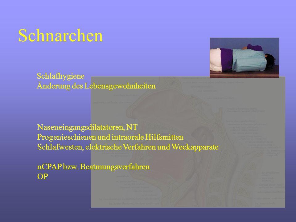 Schnarchen Schlafhygiene Änderung des Lebensgewohnheiten Naseneingangsdilatatoren, NT Progenieschienen und intraorale Hilfsmitten Schlafwesten, elektr