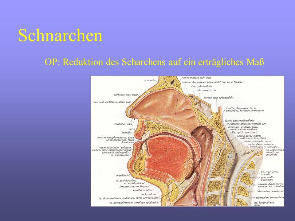 Schnarchen OP: Reduktion des Scharchens auf ein erträgliches Maß
