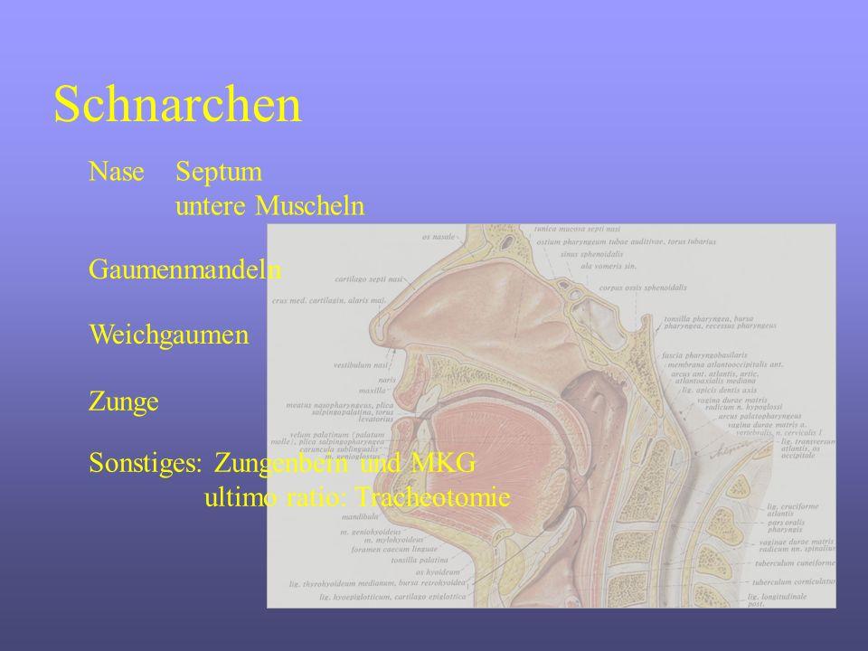 Schnarchen NaseSeptum untere Muscheln Gaumenmandeln Weichgaumen Sonstiges: Zungenbein und MKG ultimo ratio: Tracheotomie Zunge