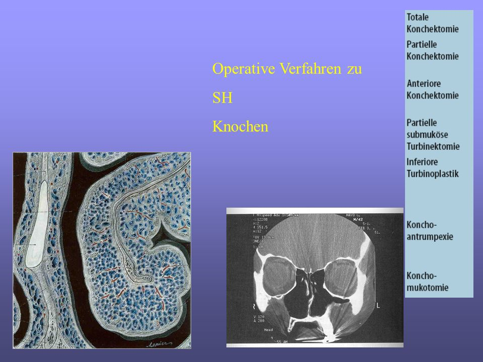 Operative Verfahren zu SH Knochen