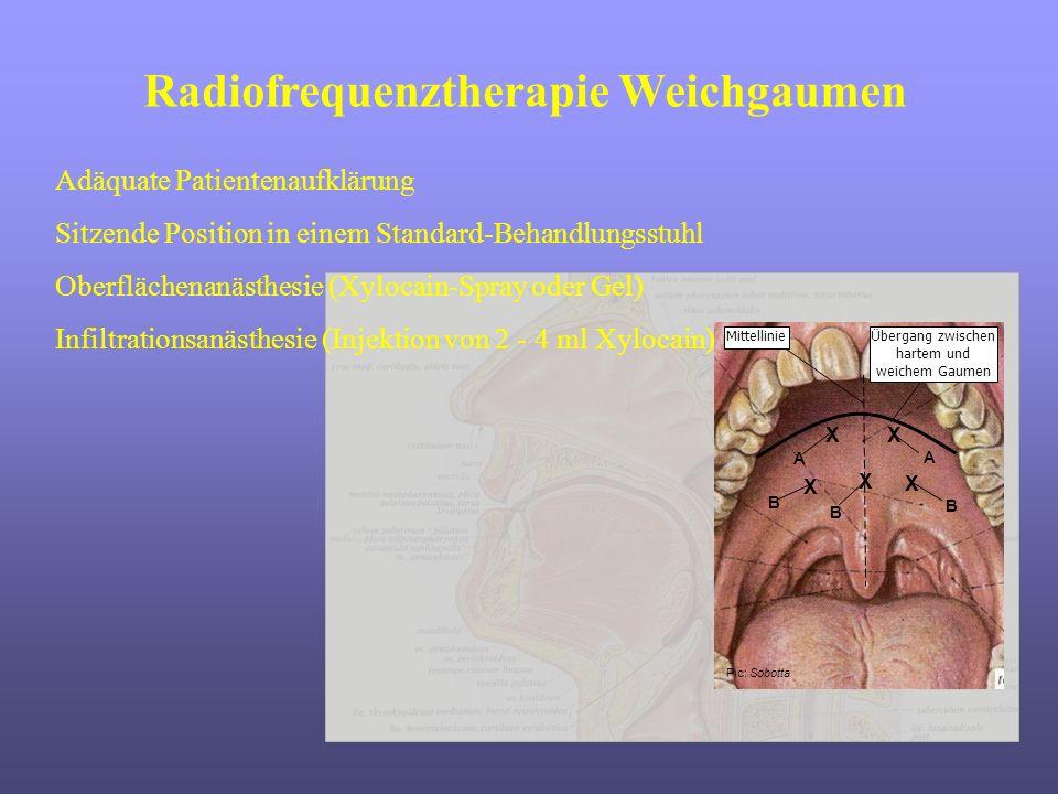 Radiofrequenztherapie Weichgaumen Pic: Sobotta MittellinieÜbergang zwischen hartem und weichem Gaumen XX X X A B A B X B Adäquate Patientenaufklärung