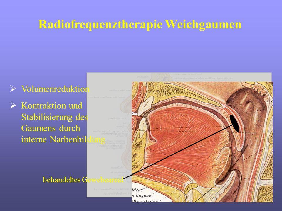 Volumenreduktion Kontraktion und Stabilisierung des Gaumens durch interne Narbenbildung behandeltes Gewebeareal Radiofrequenztherapie Weichgaumen