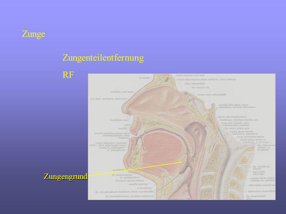 Zunge Zungenteilentfernung RF Zungengrund