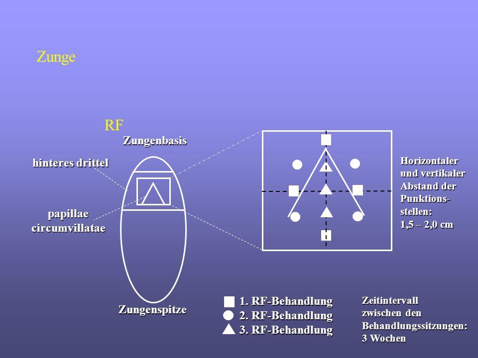 Zungenspitze Zungenbasis hinteres drittel papillae circumvillatae 1. RF-Behandlung 2. RF-Behandlung 3. RF-Behandlung Zeitintervall zwischen den Behand