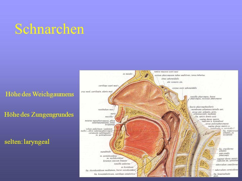 Radiofrequenztherapie Weichgaumen Pic: Sobotta MittellinieÜbergang zwischen hartem und weichem Gaumen XX X X A B A B X B Adäquate Patientenaufklärung Sitzende Position in einem Standard-Behandlungsstuhl Oberflächenanästhesie (Xylocain-Spray oder Gel) Infiltrationsanästhesie (Injektion von 2 - 4 ml Xylocain)