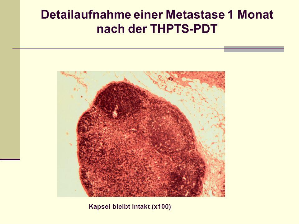 Detailaufnahme einer Metastase 1 Monat nach der THPTS-PDT Kapsel bleibt intakt (x100)