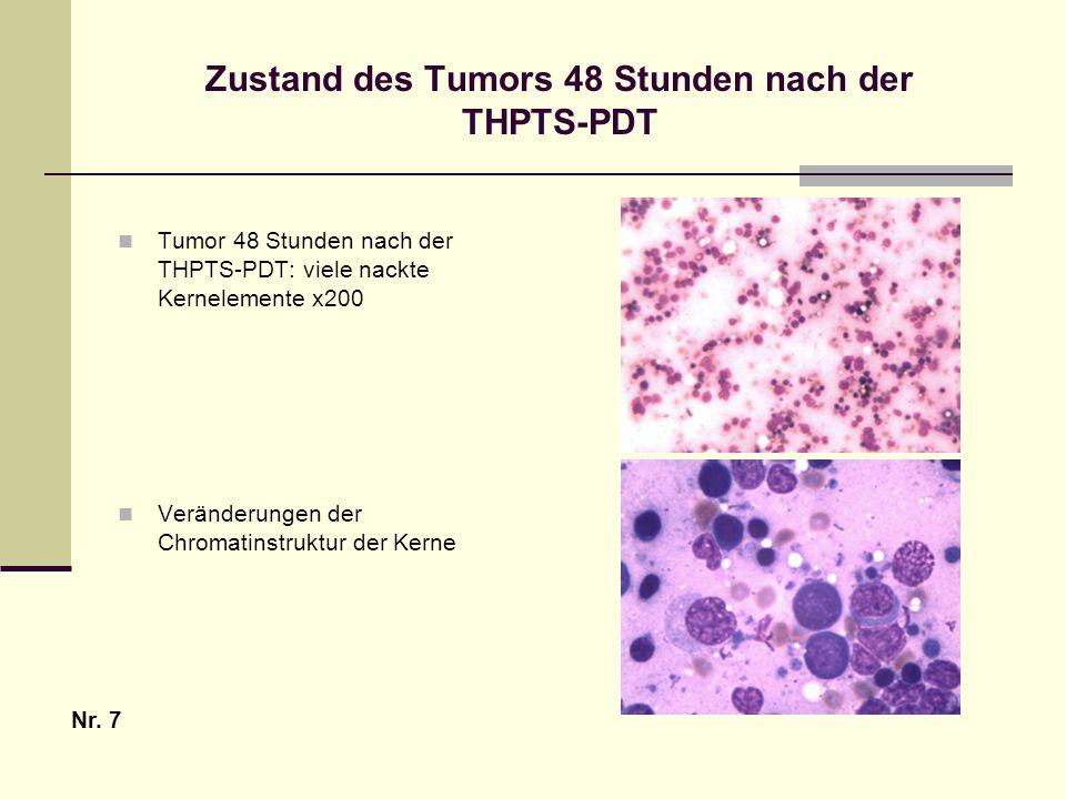 Zustand des Tumors 48 Stunden nach der THPTS-PDT Tumor 48 Stunden nach der THPTS-PDT: viele nackte Kernelemente x200 Veränderungen der Chromatinstrukt