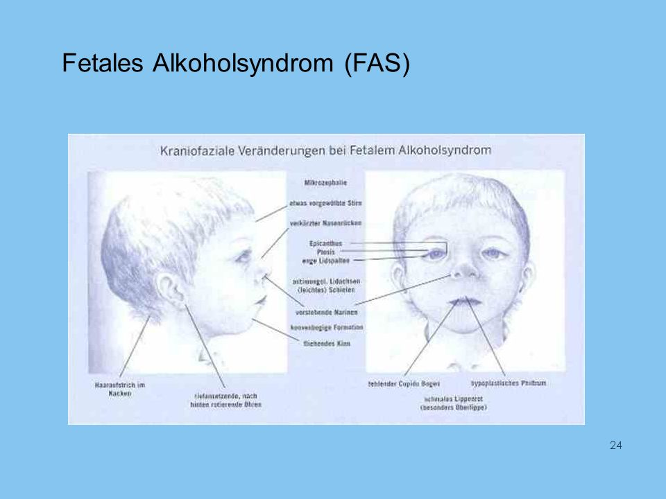 Fetales Alkoholsyndrom (FAS) 24