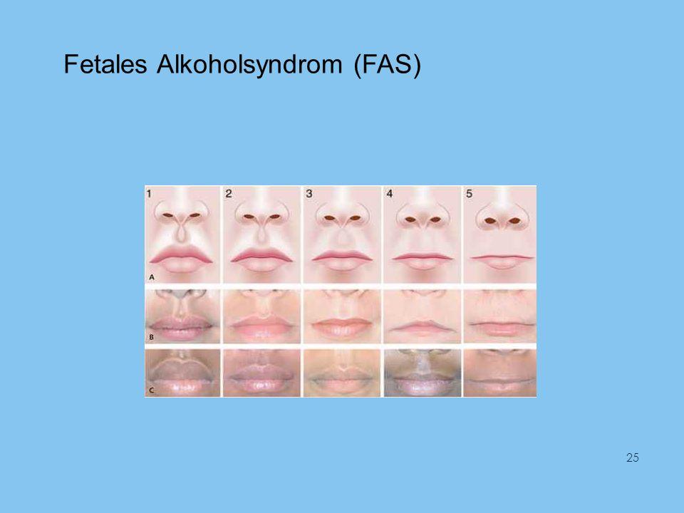 Fetales Alkoholsyndrom (FAS) 25