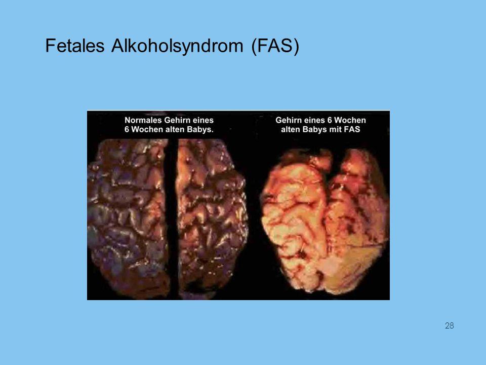 Fetales Alkoholsyndrom (FAS) 28
