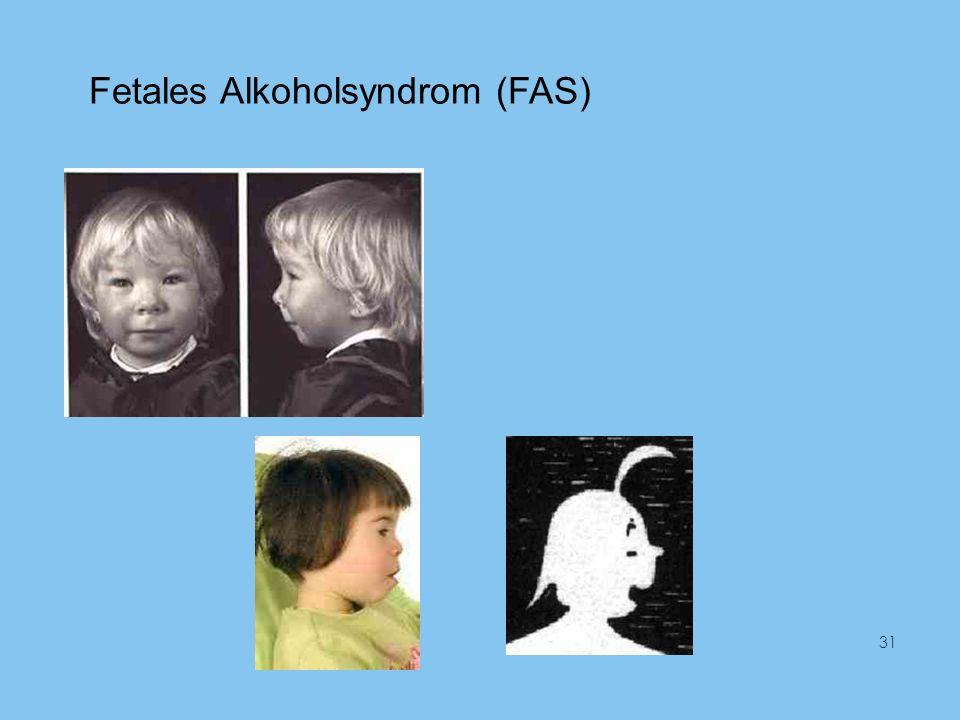 Fetales Alkoholsyndrom (FAS) 31
