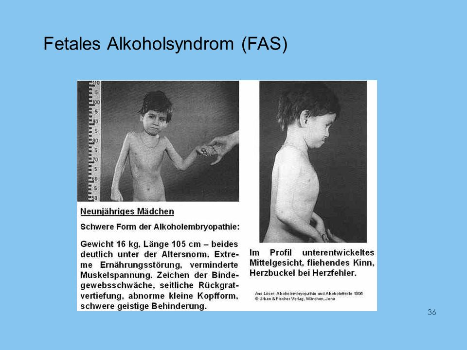 Fetales Alkoholsyndrom (FAS) 36