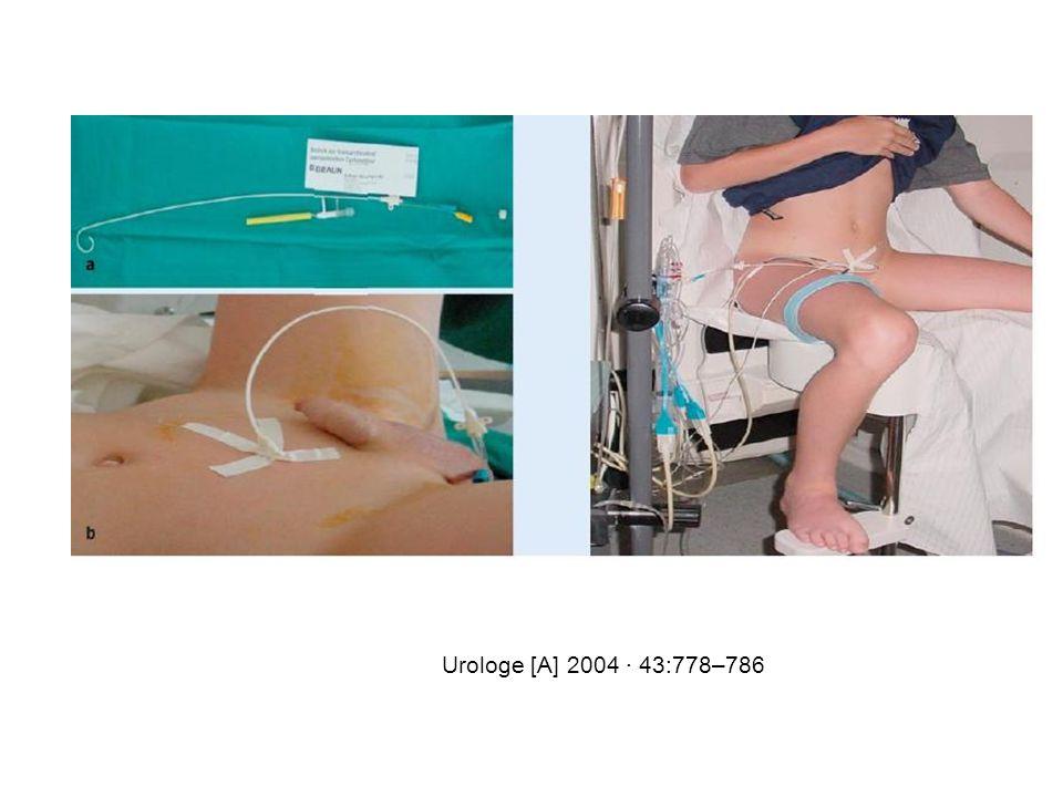 Urologe [A] 2004 · 43:778–786