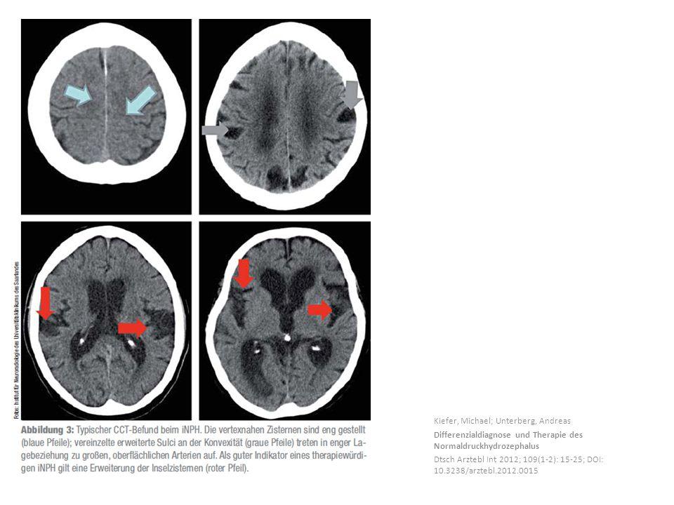 Kiefer, Michael; Unterberg, Andreas Differenzialdiagnose und Therapie des Normaldruckhydrozephalus Dtsch Arztebl Int 2012; 109(1-2): 15-25; DOI: 10.3238/arztebl.2012.0015