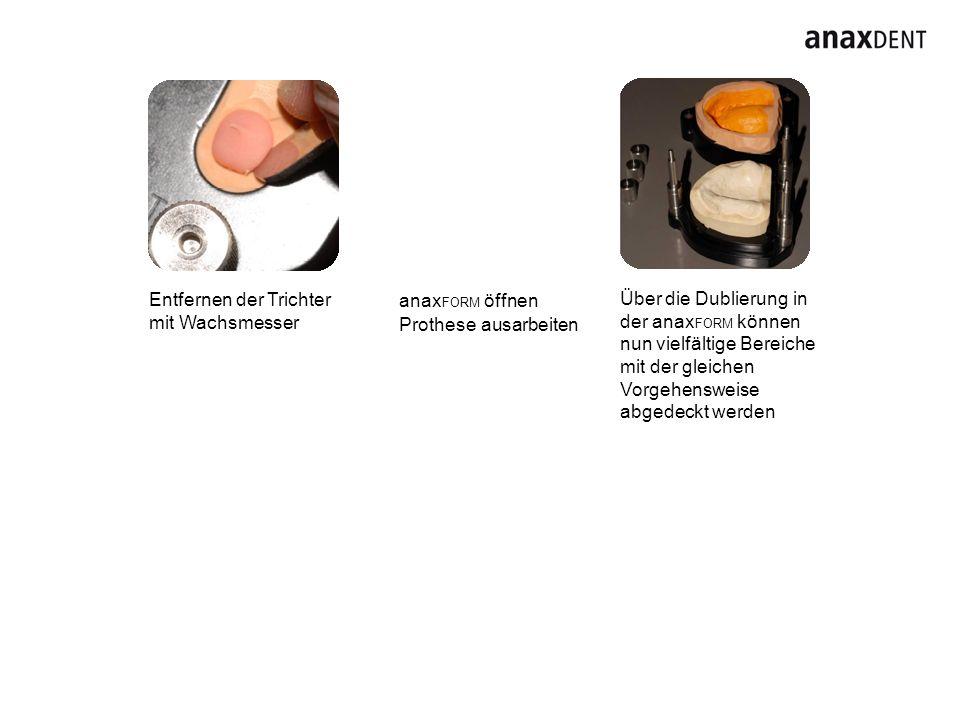 Entfernen der Trichter mit Wachsmesser anax FORM öffnen Prothese ausarbeiten Über die Dublierung in der anax FORM können nun vielfältige Bereiche mit
