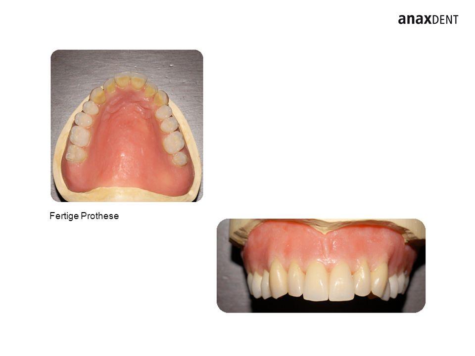 Fertige Prothese