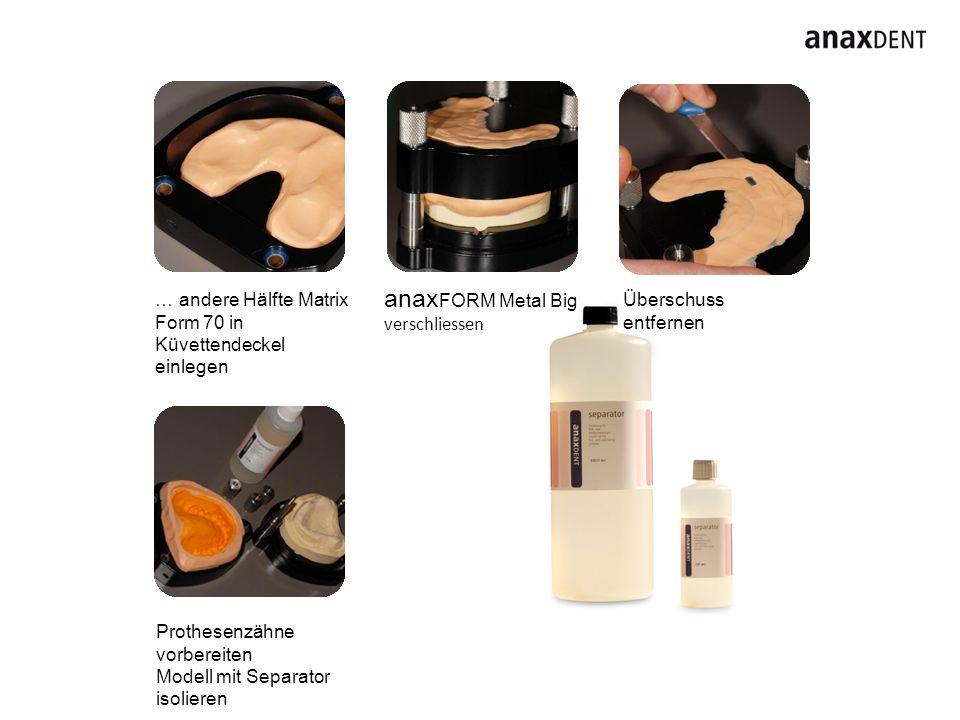 … andere Hälfte Matrix Form 70 in Küvettendeckel einlegen Überschuss entfernen Prothesenzähne vorbereiten Modell mit Separator isolieren anax FORM Met