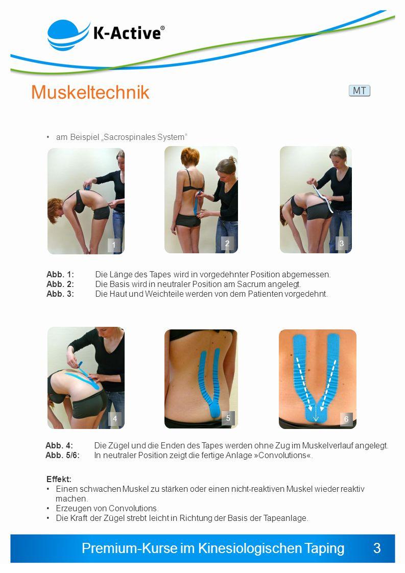 Premium-Kurse im Kinesiologischen Taping Muskeltechnik am Beispiel Sacrospinales System 1 2 Abb.