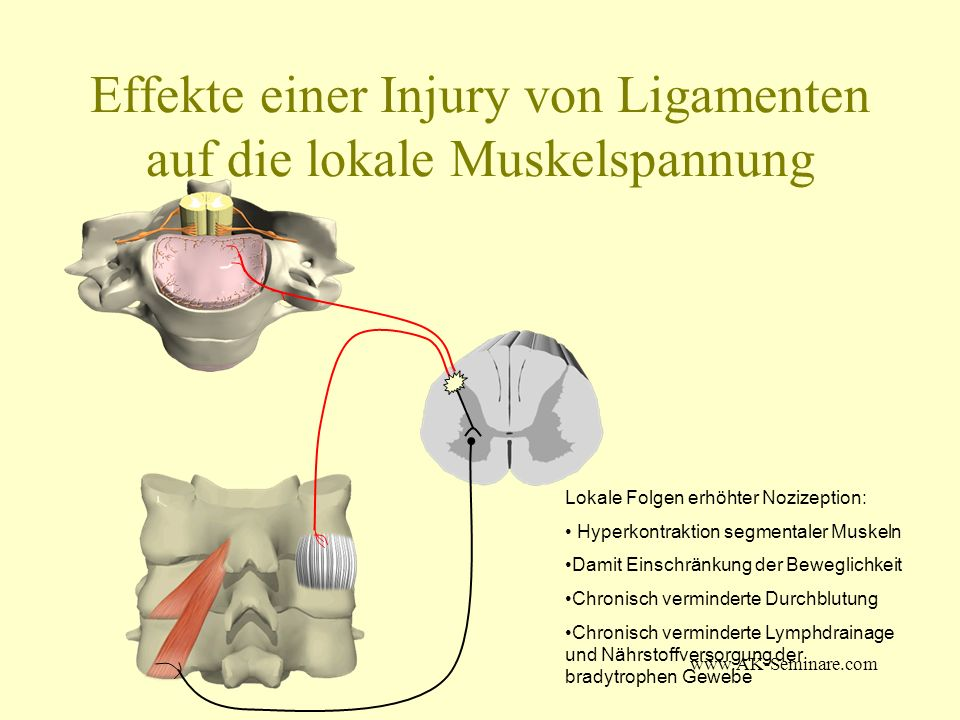 www.AK-Seminare.com Ausblick Our data suggest, that the presented treatment protocol with combination of Set Point Technique, Injury Recall Technique and High potency homeopathic remedies enhances the effectivity of scar related faults treatment with Applied Kinesiology.