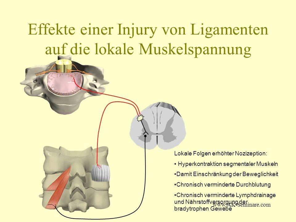 www.AK-Seminare.com Effekte einer Injury von Ligamenten auf die lokale Muskelspannung Lokale Folgen erhöhter Nozizeption: Hyperkontraktion segmentaler