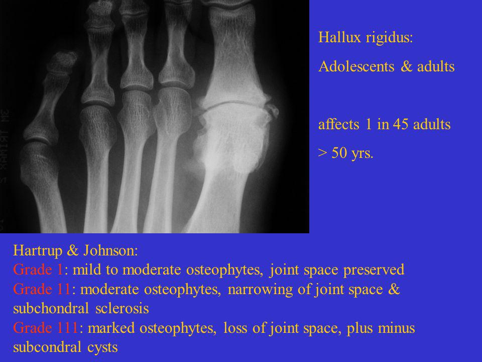 Hallux rigidus: Adolescents & adults affects 1 in 45 adults > 50 yrs. Hartrup & Johnson: Grade 1: mild to moderate osteophytes, joint space preserved
