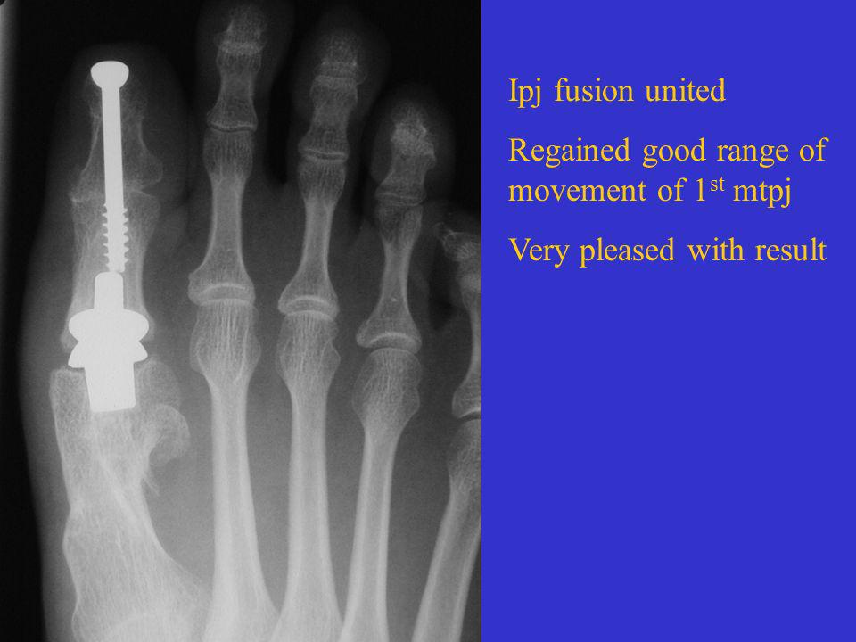 Ipj fusion united Regained good range of movement of 1 st mtpj Very pleased with result