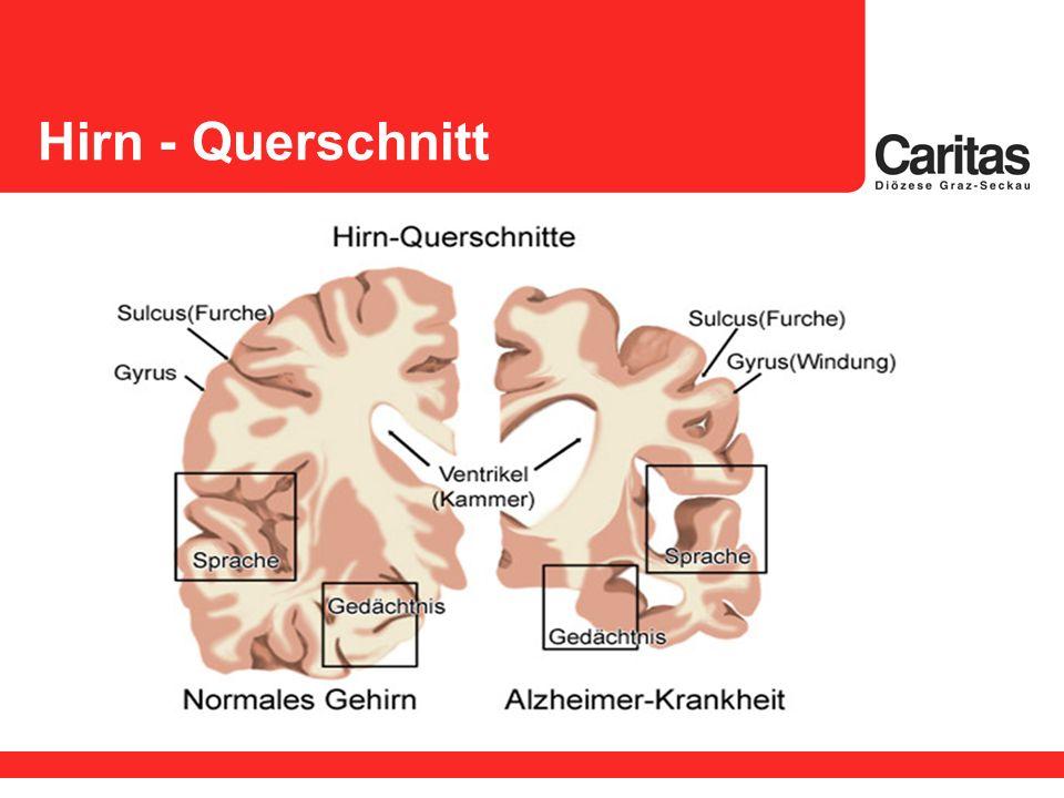 Unser Gehirn Was leistet unser Gehirn.