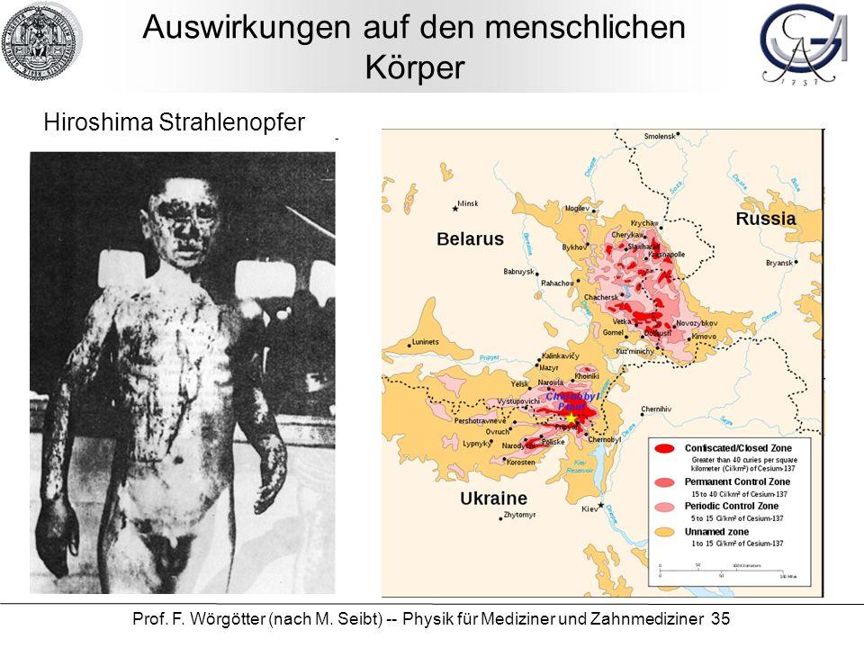 Prof. F. Wörgötter (nach M. Seibt) -- Physik für Mediziner und Zahnmediziner 35 Auswirkungen auf den menschlichen Körper Hiroshima Strahlenopfer