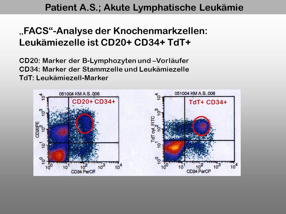 Patient A.S.; Akute Lymphatische Leukämie CD20+ CD34+ TdT+ CD34+ FACS-Analyse der Knochenmarkzellen: Leukämiezelle ist CD20+ CD34+ TdT+ CD20: Marker d