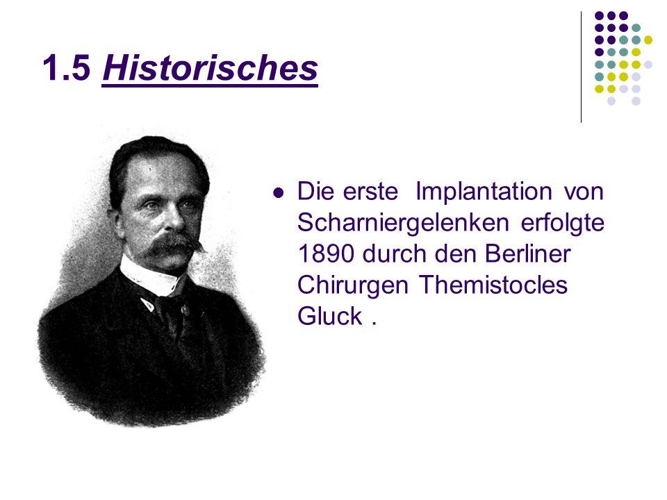 1.5 Historisches Die erste Implantation von Scharniergelenken erfolgte 1890 durch den Berliner Chirurgen Themistocles Gluck.