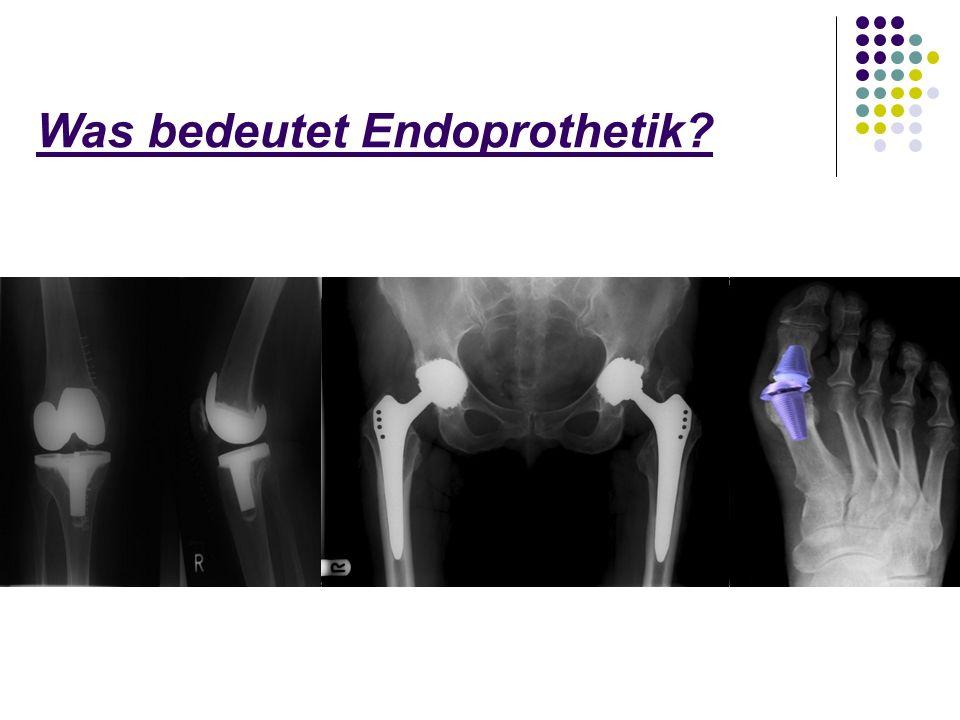 Was bedeutet Endoprothetik?