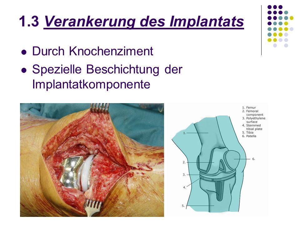 1.3 Verankerung des Implantats Durch Knochenziment Spezielle Beschichtung der Implantatkomponente
