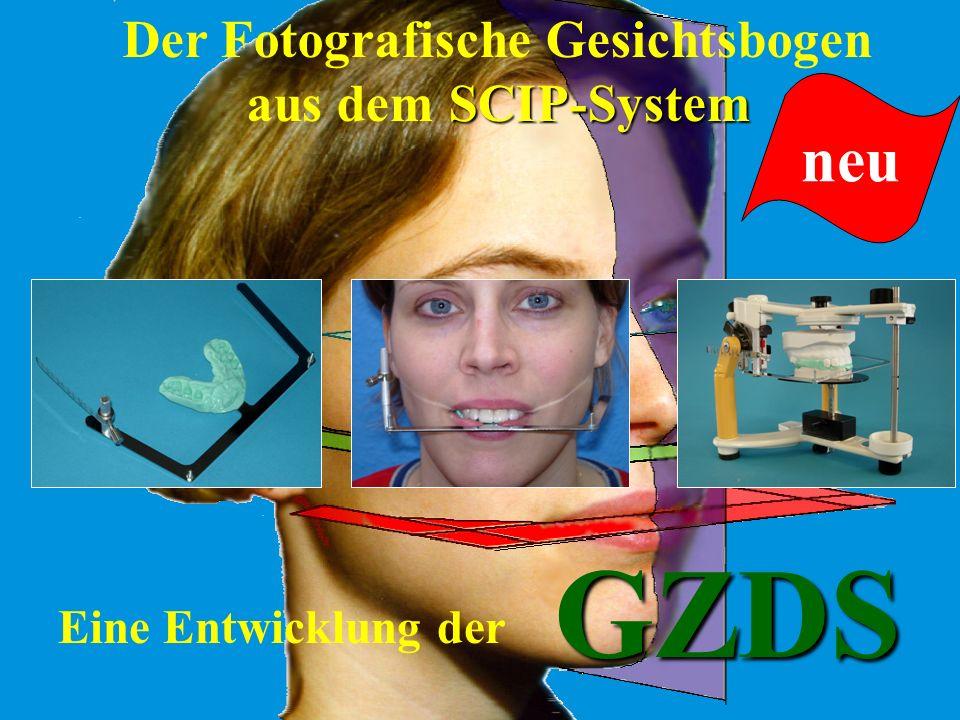 für prothetische Arbeiten für Aufbißschienen für Funktionsanalysen für KFO-Geräte GZDS Der Fotografische Gesichtsbogen aus dem SCIP-System