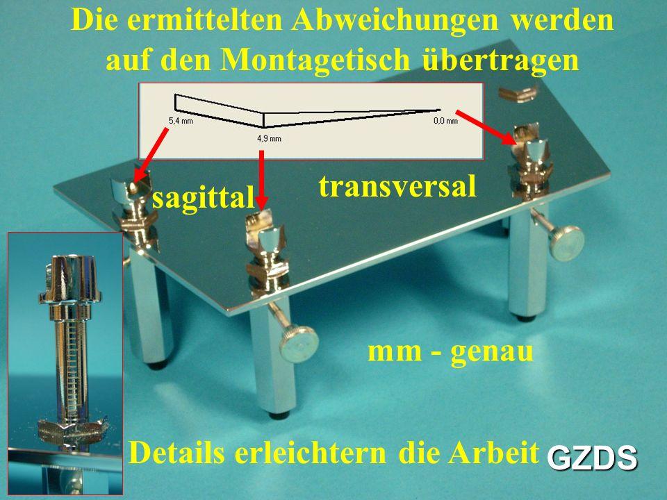 Die ermittelten Abweichungen werden auf den Montagetisch übertragen Details erleichtern die Arbeit GZDS sagittal transversal mm - genau