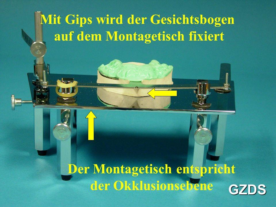 Mit Gips wird der Gesichtsbogen auf dem Montagetisch fixiert Der Montagetisch entspricht der Okklusionsebene GZDS