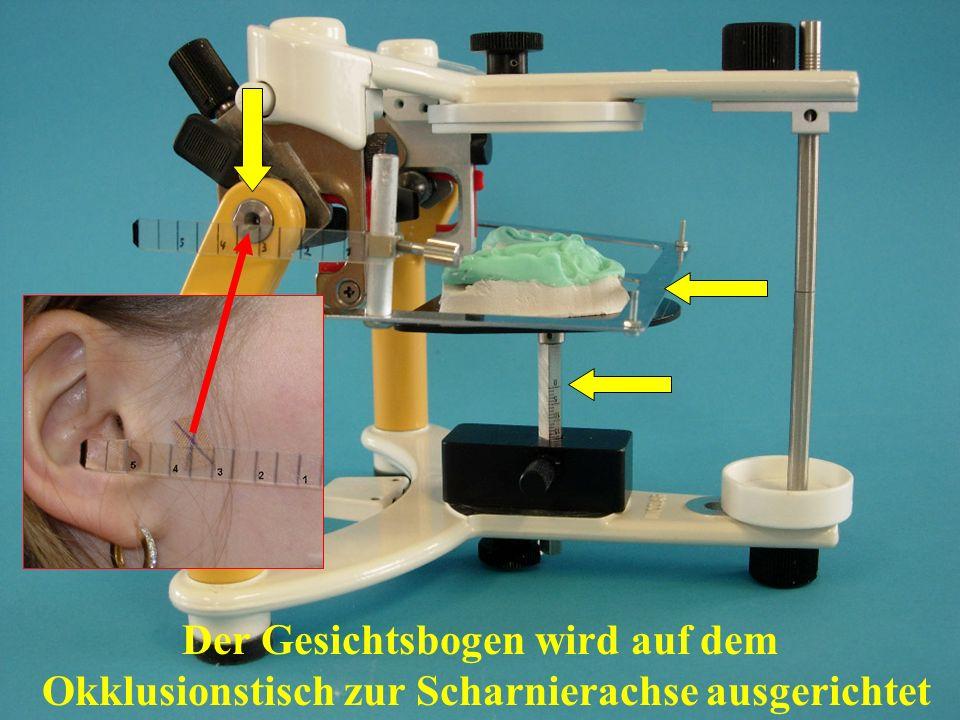 Der Gesichtsbogen wird auf dem Okklusionstisch zur Scharnierachse ausgerichtet