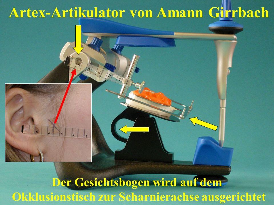 Der Gesichtsbogen wird auf dem Okklusionstisch zur Scharnierachse ausgerichtet Artex-Artikulator von Amann Girrbach
