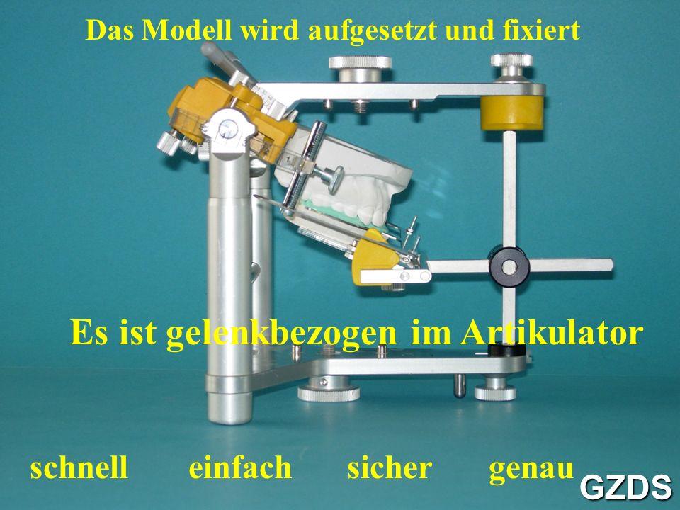 Das Modell wird aufgesetzt und fixiert Es ist gelenkbezogen im Artikulator schnelleinfachsichergenau GZDS