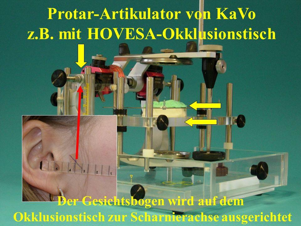 Der Gesichtsbogen wird auf dem Okklusionstisch zur Scharnierachse ausgerichtet Protar-Artikulator von KaVo z.B. mit HOVESA-Okklusionstisch