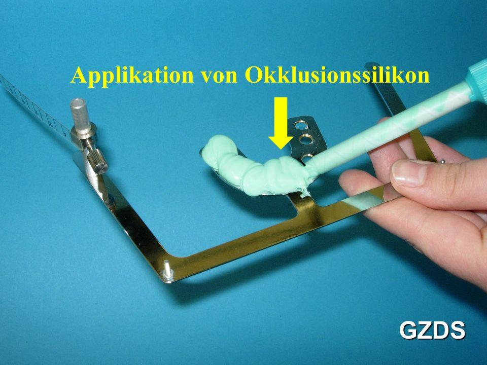 Applikation von Okklusionssilikon GZDS