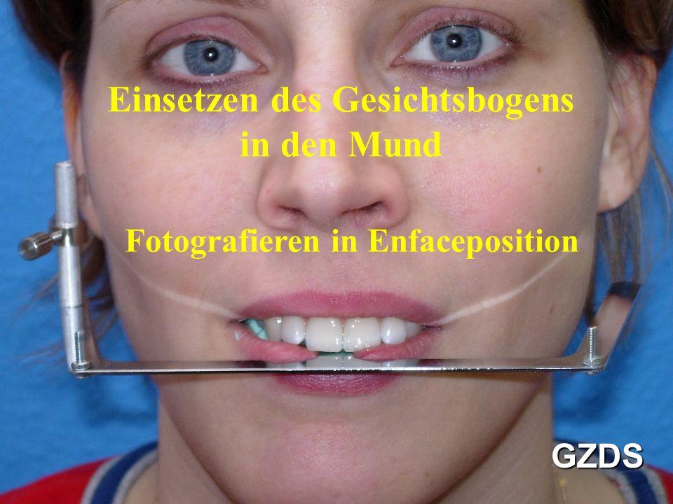 Einsetzen des Gesichtsbogens in den Mund Fotografieren in Enfaceposition GZDS