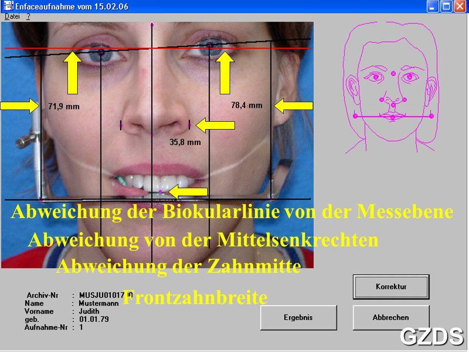 Der fertige Gesichtsbogen GZDS