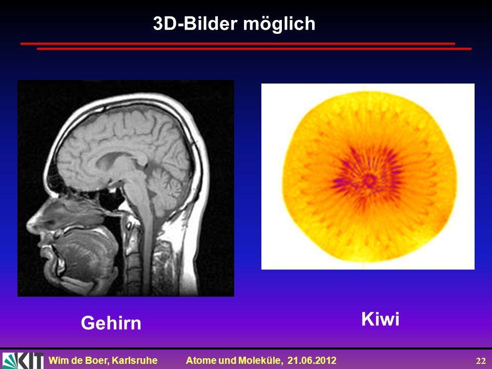 Wim de Boer, Karlsruhe Atome und Moleküle, 21.06.2012 22 3D-Bilder möglich Gehirn Kiwi